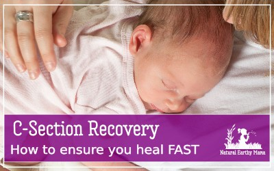 Want to heal fast from your cesarean section? You have to try these 10 genius hack to recovering faster! Have you got a planned csection? Healing from a c section is not always easy! Check out these 10 tips to make your recovery faster and less painful #csection #labor #pregnancy #nanturalearthymam